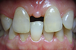 Diastema (tarpdantė) (ortodontija)