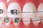 Dantų plokštelės