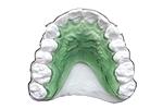 Ortodontiniai aparatai, dantų plokštelės